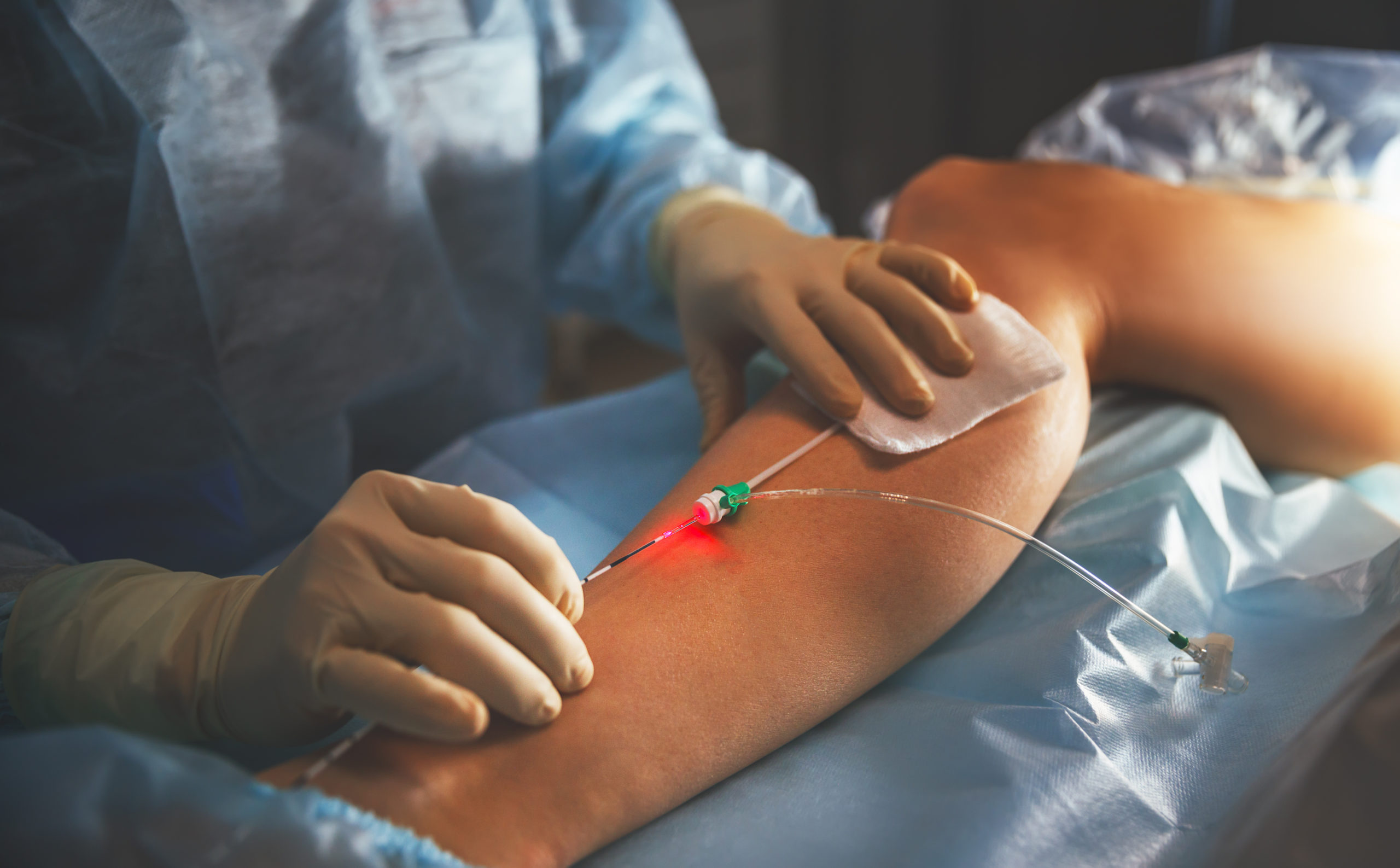 Chirurgia naczyniowa - Klinika Chirurgii Mazan - Katowice